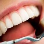 تبيض الاسنان في يوم